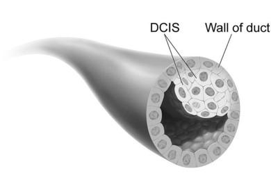 chimiothérapie orale cancer digestif