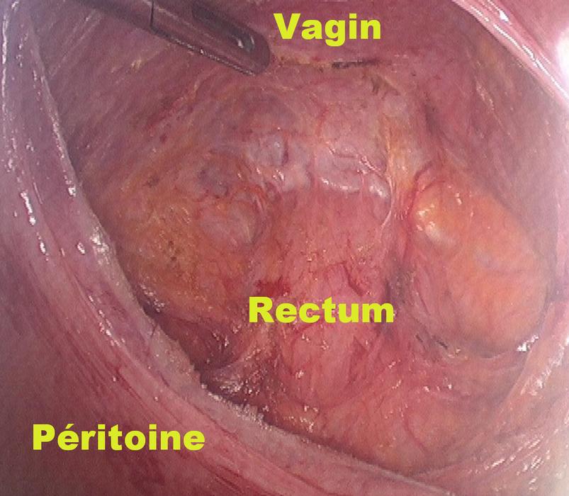 rvdoc : chirurgie-du-prolapsus-par-coelioscopie